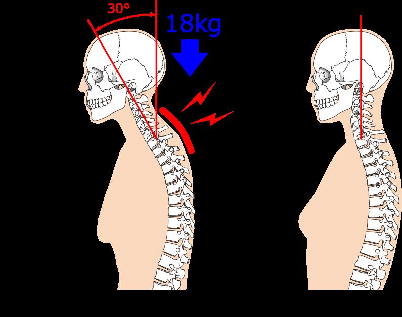 首 肩こり 実はストレートネックは改善しなくてもいいのです 栄 久屋大通駅 徒歩4分 コリと痛みの専門店 ソフト整体reef